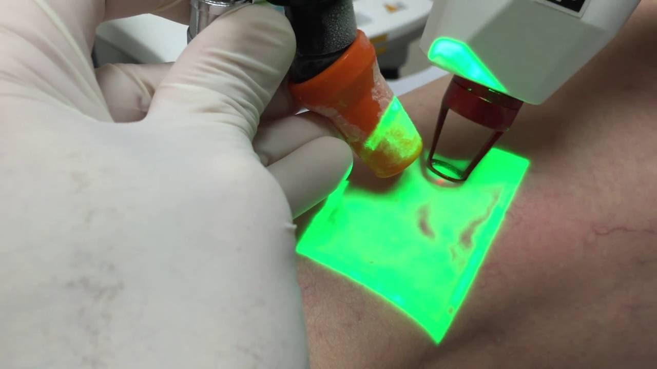 Krioskleroterapiya